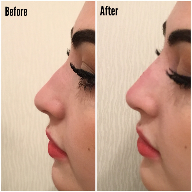 nose corection with dermal filler