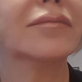 sally lip.jpg