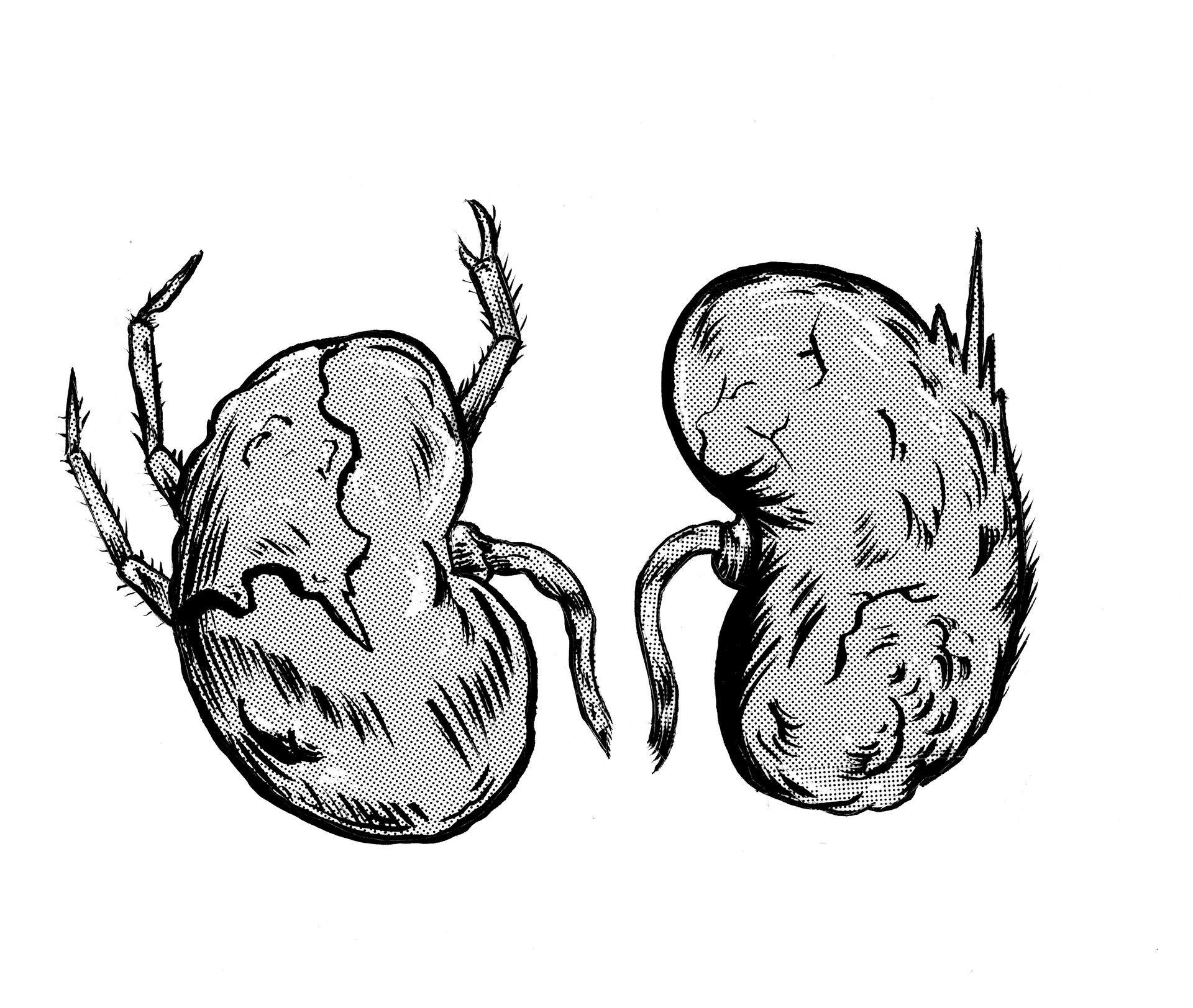 Kidneys.png