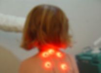 the first multichannel laser needle acupuncture clinic in London