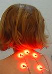 can acupuncture help children? paediatric acupuncture in London, children acupuncture. Acupuncture in London. the best Chinese acupuncture, harley Street, Knightsbridge, Sloane Street, Kingston upon Thames, Richmond