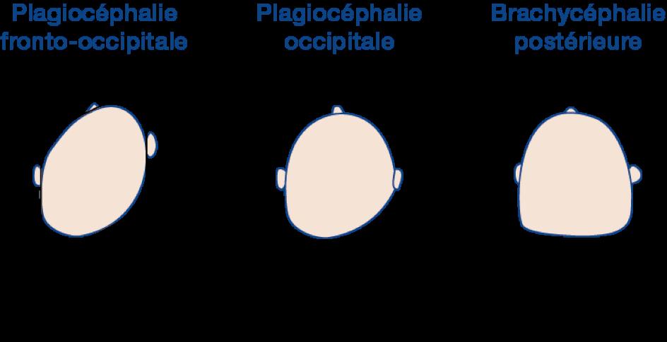 la plagiocéphalie fronto-occipitale, la plagiocéphalie occipitale, la brachycéphalie