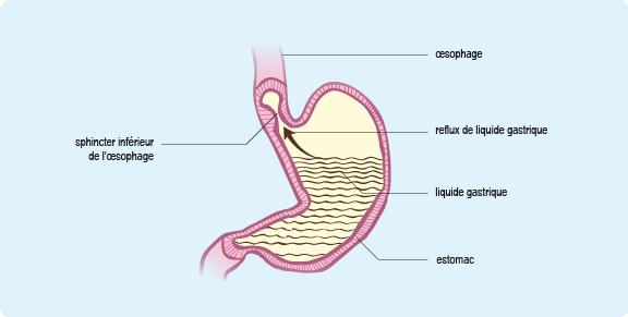 comment le liquide de l'estomac est normalement stoppé par le sphincter cardia