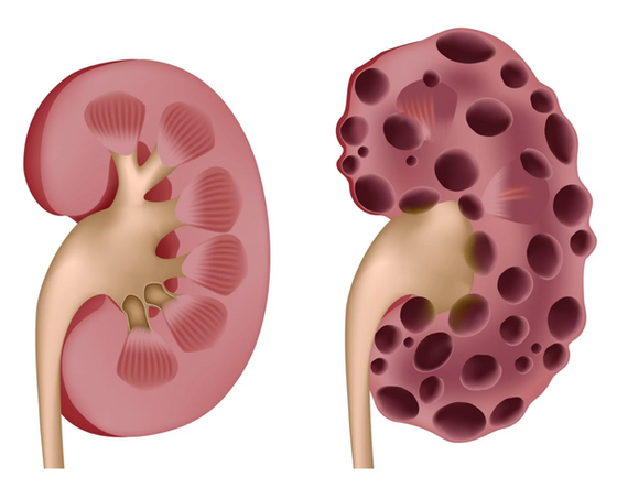 What Is Cystic Kidney Disease?