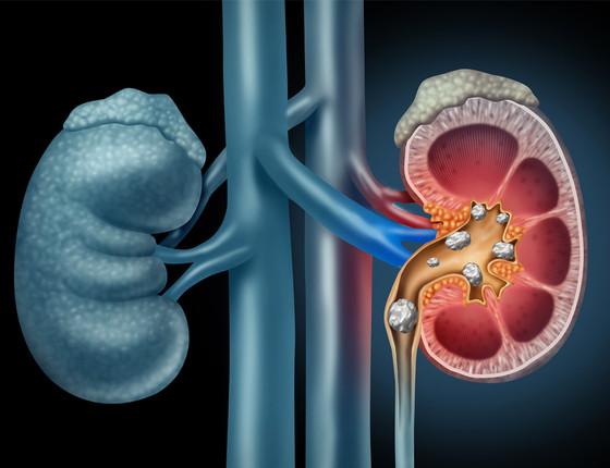 Diet & Kidney Stone Prevention