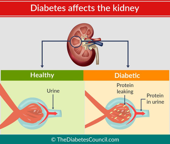 How Having Diabetes Can Affect Your Kidneys