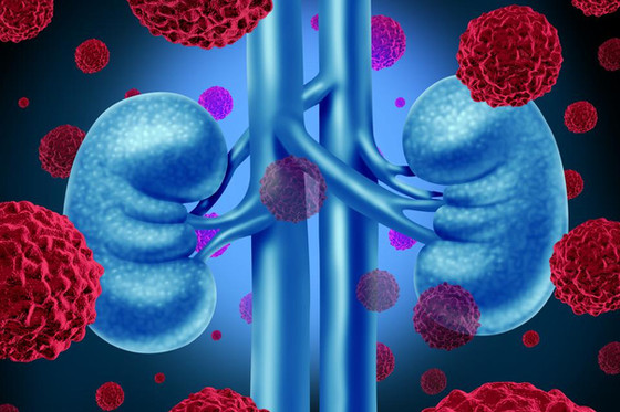 Why Covid-19 Is Affecting Kidney Transplants