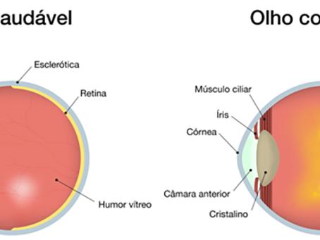 Degeneração Macular Relacionada á Idade (DMRI)