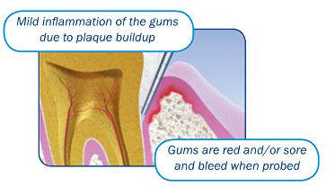 periodontal disease 3.jpg