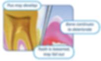 periodontal disease 4.jpg