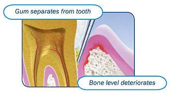 Periodontal Disease 2.jpg