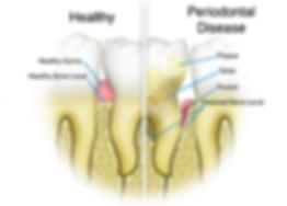Periodantal disease.png