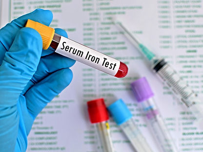 Tests that diagnose iron deficiency anemia