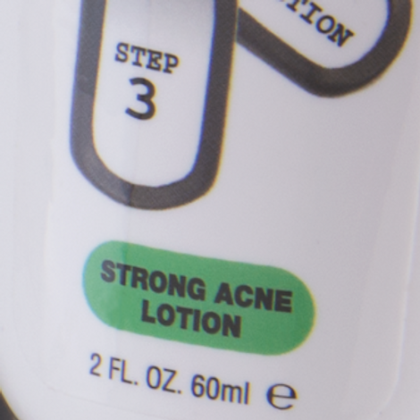 Strong Acne Lotion
