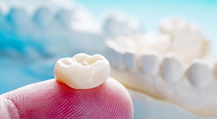 審美歯科で使うクラウン(被せもの)
