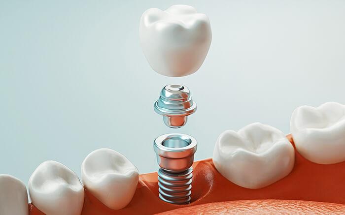 審美歯科で行うインプラント