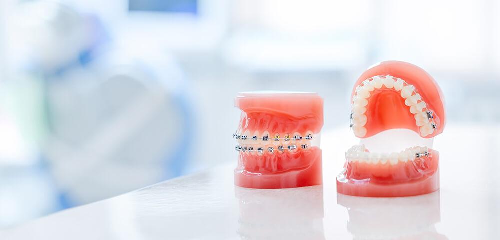 審美歯科でできる歯列矯正