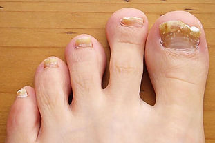toe nail fungus picture