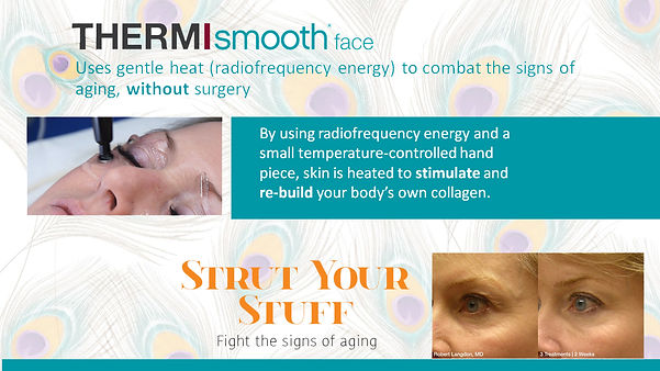 thermi smooth explained.jpg