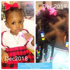 tiny tot's hair growth