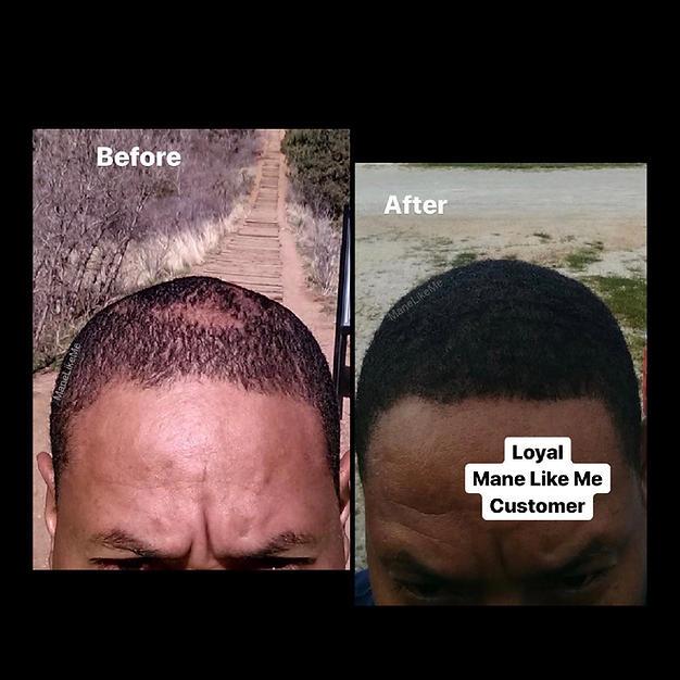 MLM Hair Restoration