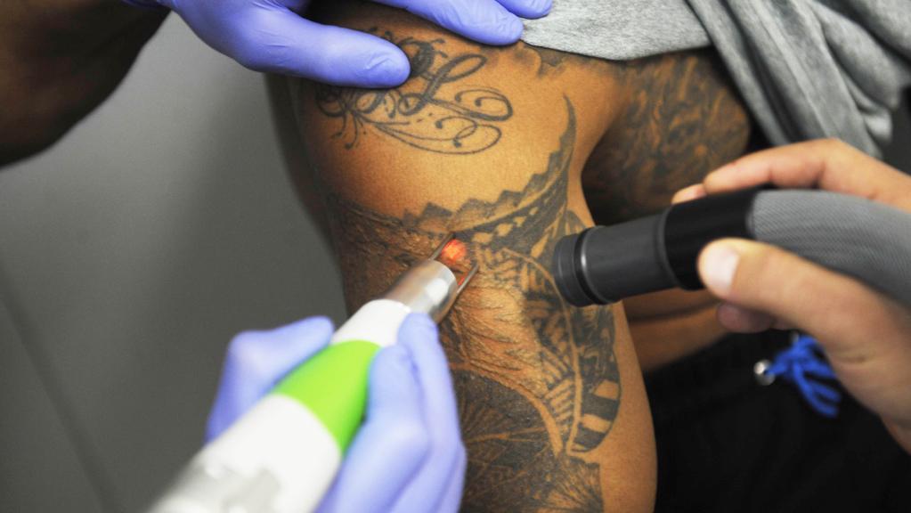 Birthmark Tattoo Removal Sheenam Skin Clinic