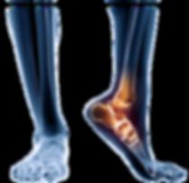 Foot pain, heel pain, insoles, orthotics