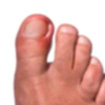 nail surgery, treatment of ingrown toenail