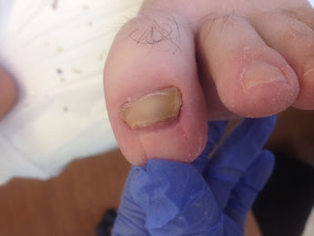 treatment of fungal nail, treatment of difficult nail