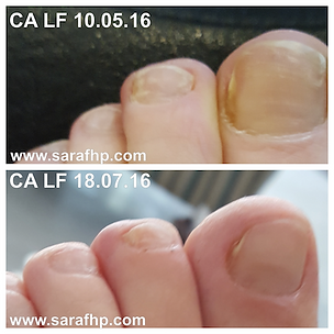 CA LF 10.05.16 - 18.07.16.png