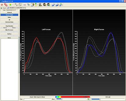 Dynamic Force Curves