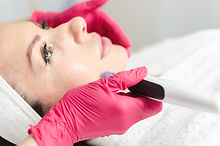 Needle mesotherapy. Microneedle meso the