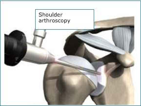 Shoulder Arthroscopy.png