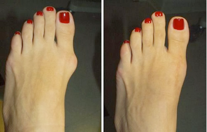 Bunion.png