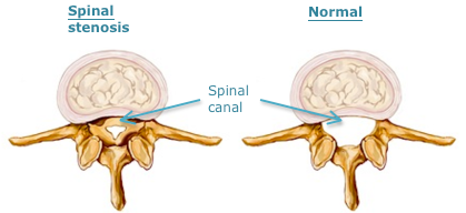 Spinal Stenosis 1.png