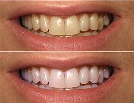 Clareamento dental à Laser! Venha fazer