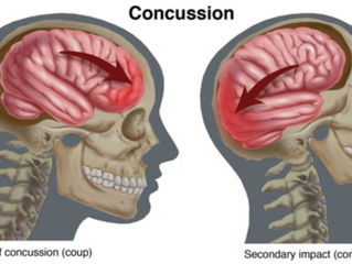 What Kind of Physical Therapist Do I Need to Manage My Concussion?