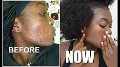 2. Black Female with acne.jpg