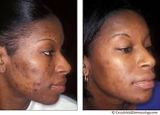 1. Black Female with acne.jpg