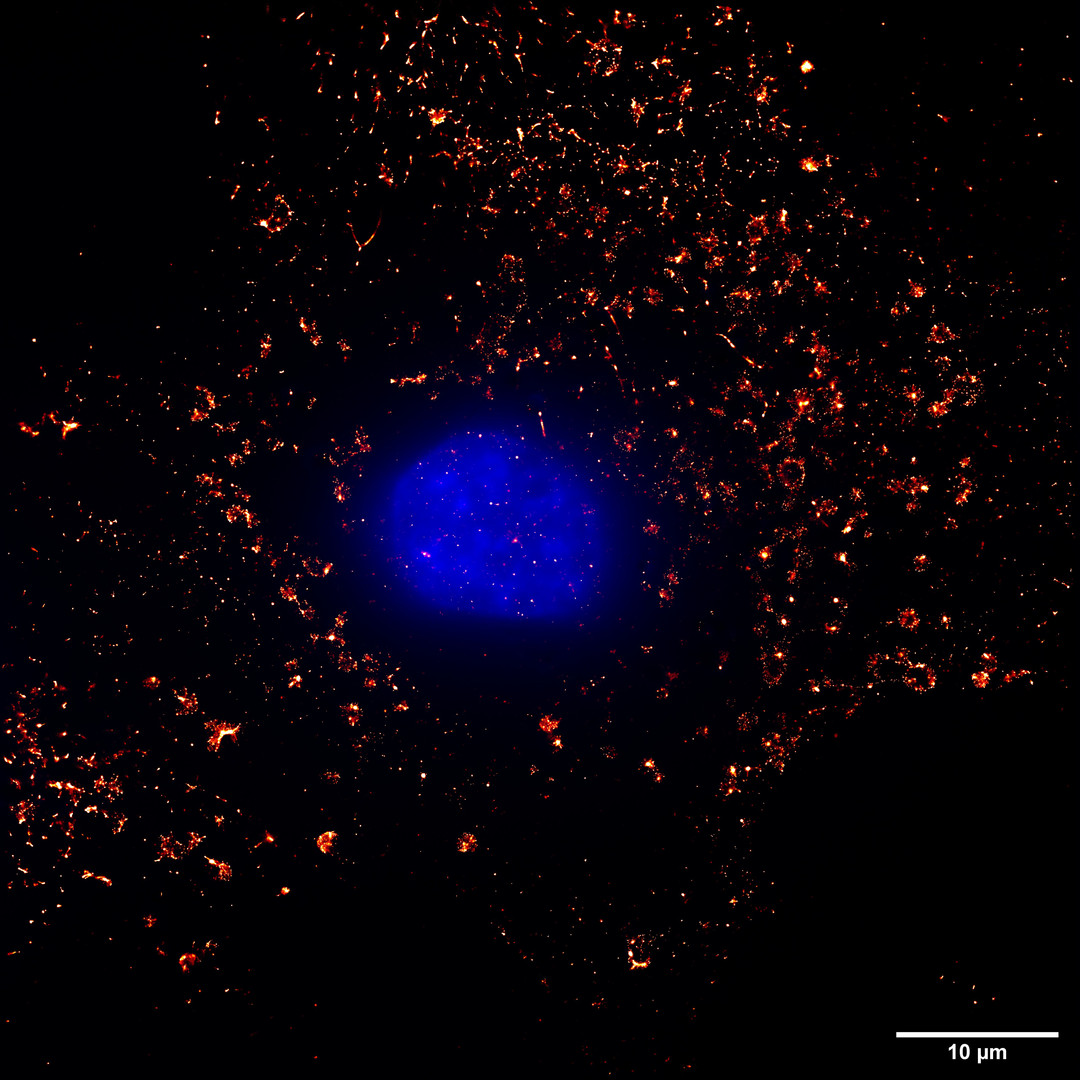 Mitochondria of Cos7 Super Resolution Image