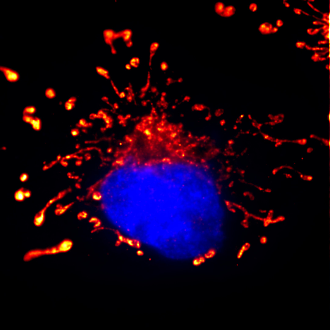 Mitochondria of Cos7 Conventional Fluorescence image)