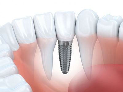 Consultation Implantologie