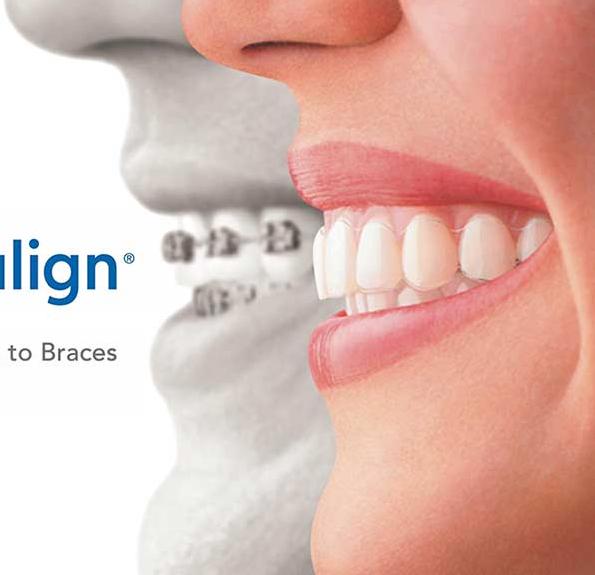 Orthodontie adulte