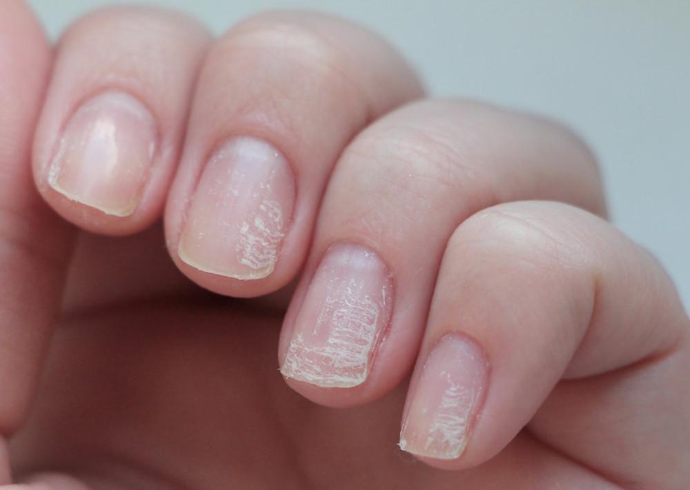 prothésiste ongulaire, ongles, ongles Montpellier, nails, manucure, beauté mains, beauté pieds, vernis, vernis semi-permanent, gel, chablons, manucure russe