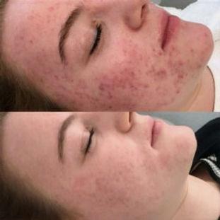 Salicylzuurpeeling-en-Clear-Skin-product