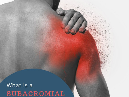 Shoulder pain: treating a subacromial impingement