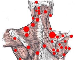 Remedial Massage Warrandyte, Remedial Massage East Doncaster, Remedial Massage Park Orchards, Remedial Massage Warranwood, Remedial Massage Donvale, Re