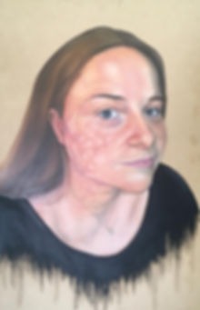 Burn Portrait Oil Painting Recovery