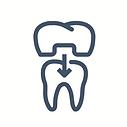 Couronne, cabinet de dentiste Cap-Rouge.