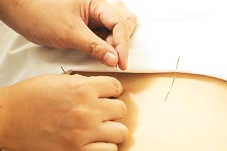 Mire jó az akupunktúra? Hogyan működik?